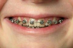stag tand- royaltyfria bilder