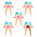 Stage of caries Royalty Free Stock Images