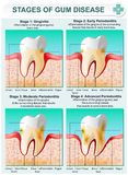 Stage of Gum Disease. Vector detailed illustration of the stages of gum disease. Image of teeth and gums in a section of bone tissue with affected areas and Royalty Free Stock Photos