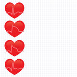 Stage of  myocardial  infarction Stock Photo