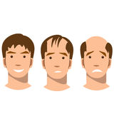 Stages of baldness. Royalty Free Stock Photo