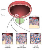 Stages of bladder cancer. Tumour of the bladder wall, showing normal urothelial cells compared to cells from 3 stages of bladder cancer Stock Photo