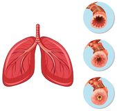 Stages of block airway to lungs. Illustration royalty free illustration