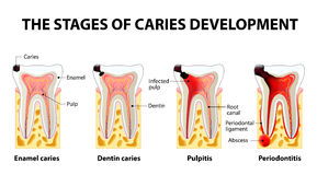 Stages of caries development Royalty Free Stock Images