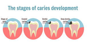 The stages of caries development. Dental toothache symbol Royalty Free Stock Photography