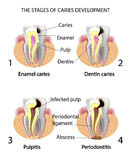 THE STAGES OF CARIES DEVELOPMENT Stock Photos