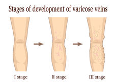 Stages of development of varicose veins Stock Photography