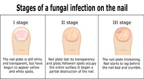 Stages of a fungal infection on the nail. Three stages of development of fungal infection on nail of the toe Royalty Free Stock Image