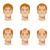Stages of hair loss and hair treatment. Vector illustration flat is isolated on a white background. different stages of hair loss Royalty Free Stock Images