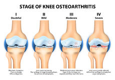 Stages of knee Osteoarthritis (OA). Kellgren and Lawrence criteria for assessment stage of osteoarthritis. The classifications are based on osteophyte Royalty Free Stock Photography