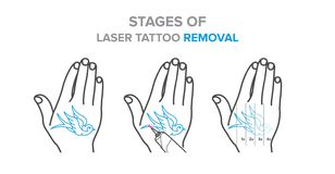 Stages Of Laser Tattoo Removal Vector Illustrations Stock Vector