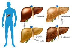 Stages of liver damage. The Progression of Liver Disease. Steatosis,fibrosis, cirrhosis vector illustration