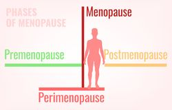 Stages of Menopause Infographic. Stages of menopause. Premenopause, perimenopause and postmenopause. Simple medical infographic useful for an educational poster Royalty Free Stock Photos