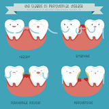 The stages of periodontal disease Royalty Free Stock Images