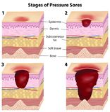 Stages of pressure sores. Progression of pressure sores (bed sores), eps8 Royalty Free Stock Images