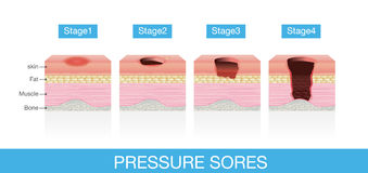 Stages of Pressure Sores Royalty Free Stock Photography