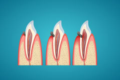 Stages progress caries on human canine. On blue background vector illustration