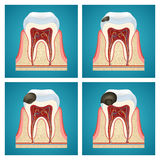 Stages progress caries on human teeth Stock Image