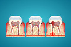 Stages progress caries on human teeth and disease gum Stock Photography