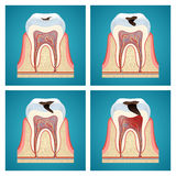 Stages progress dental caries. On blue background Stock Images