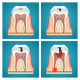 Stages progress dental caries. And toothache Royalty Free Stock Photos