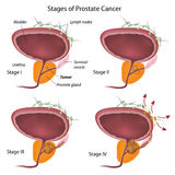Stages of prostate cancer Royalty Free Stock Image