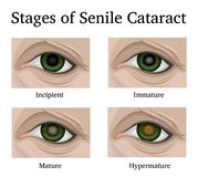 Stages of Senile Cataracts Royalty Free Stock Photography