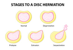 Stages to a disc herniation. Normal, Degeneration, Prolapse, Extrusion, Sequestration Stock Photography