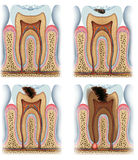 Stages of tooth caries Stock Images