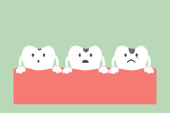 Stages of tooth decay Stock Image