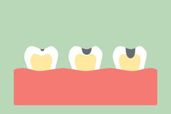 Stages of tooth decay. Dental cartoon vector, stages of tooth decay Stock Photo
