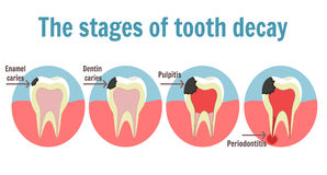 The stages of tooth decay infographic. Dental toothache symbol Stock Photography