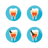Stages of tooth disease Stock Photography
