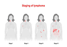 Staging of lymphoma. Woman silhouette with highlighted internal Royalty Free Stock Photos
