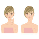 Stain drying skin woman Stock Photos
