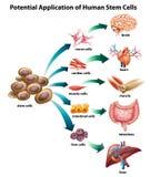 Stamm cell_application Stockfoto