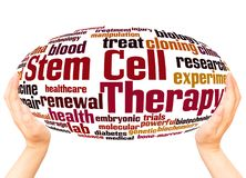 Stammzellentherapiewortwolkenhandbereichkonzept lizenzfreies stockfoto