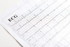 Stampato di ECG immagini stock libere da diritti