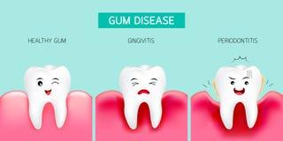 Stap van gomziekte Gezonde tand en tandvleesontsteking Royalty-vrije Stock Afbeeldingen