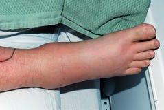 Staph Infecton Стоковые Изображения RF