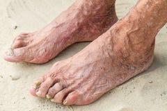 Stara kobieta pacjent nogi Zdjęcie Stock