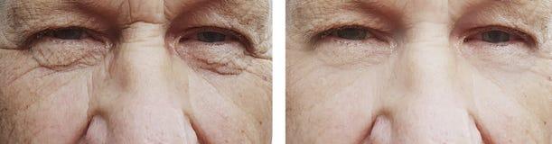 starego człowieka oka zmarszczenia przedtem po traktowania odmładzania zdjęcia stock