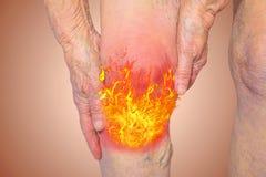 Starsza kobieta trzyma kolano z bólem royalty ilustracja