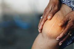 Starsza kobieta trzyma kolano z bólem Od kolanowej operaci zdjęcia royalty free