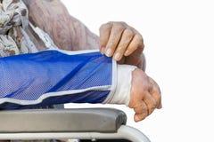 Starsza kobieta z łamaną ręką na tynk obsadzie Obrazy Stock