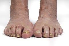 Starsza kobiety stopa Obrazy Stock
