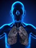Starsza samiec z nowotwór płuc ilustracją Fotografia Stock