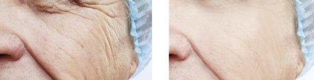 Starsze osoby obsługują przed i po zmarszczenie procedurą zdjęcie royalty free
