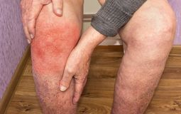 Starszy mężczyzna trzyma kolano z bólem kolaż Pojęcie abstrakta rozpacz i ból zdjęcia royalty free