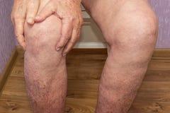 Starszy mężczyzna trzyma kolano z bólem kolaż Pojęcie abstrakta rozpacz i ból zdjęcie stock